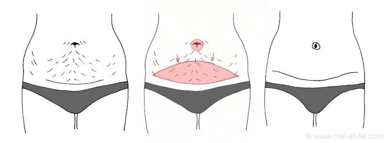 Bauchdeckenstraffung_klein